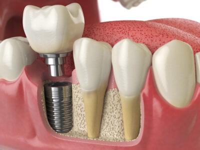 失ってしまった歯の部分を補う方法の1つがインプラントです