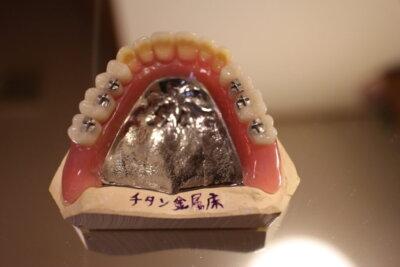 レビン歯加工義歯