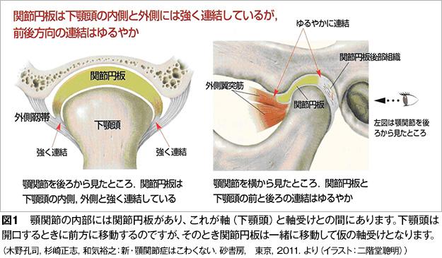 顎関節症図1