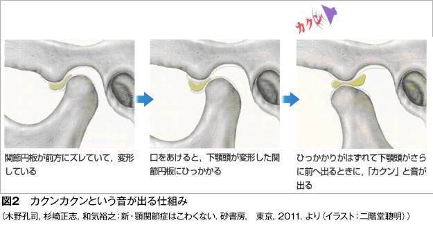 顎関節症図2