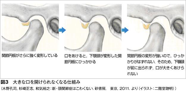 顎関節症図3