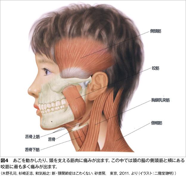 顎関節症図4