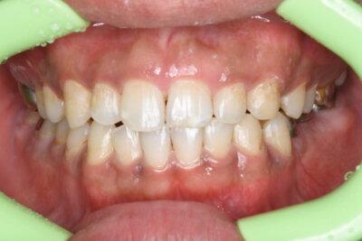 歯茎の黒ずみ除去(術後)