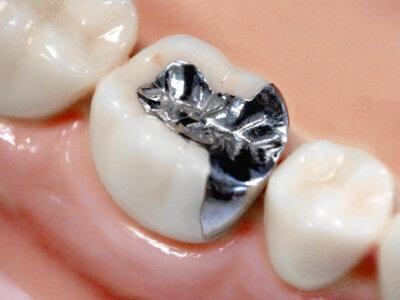 金銀パラジウム合金(銀歯)
