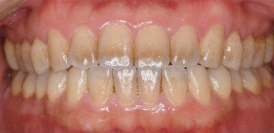 歯科医師による歯面ツルツルケア術前