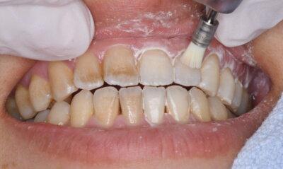 歯科医師による歯面ツルツルケア術中