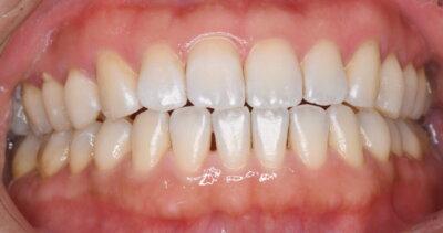 歯科医師による歯面ツルツルケア術後