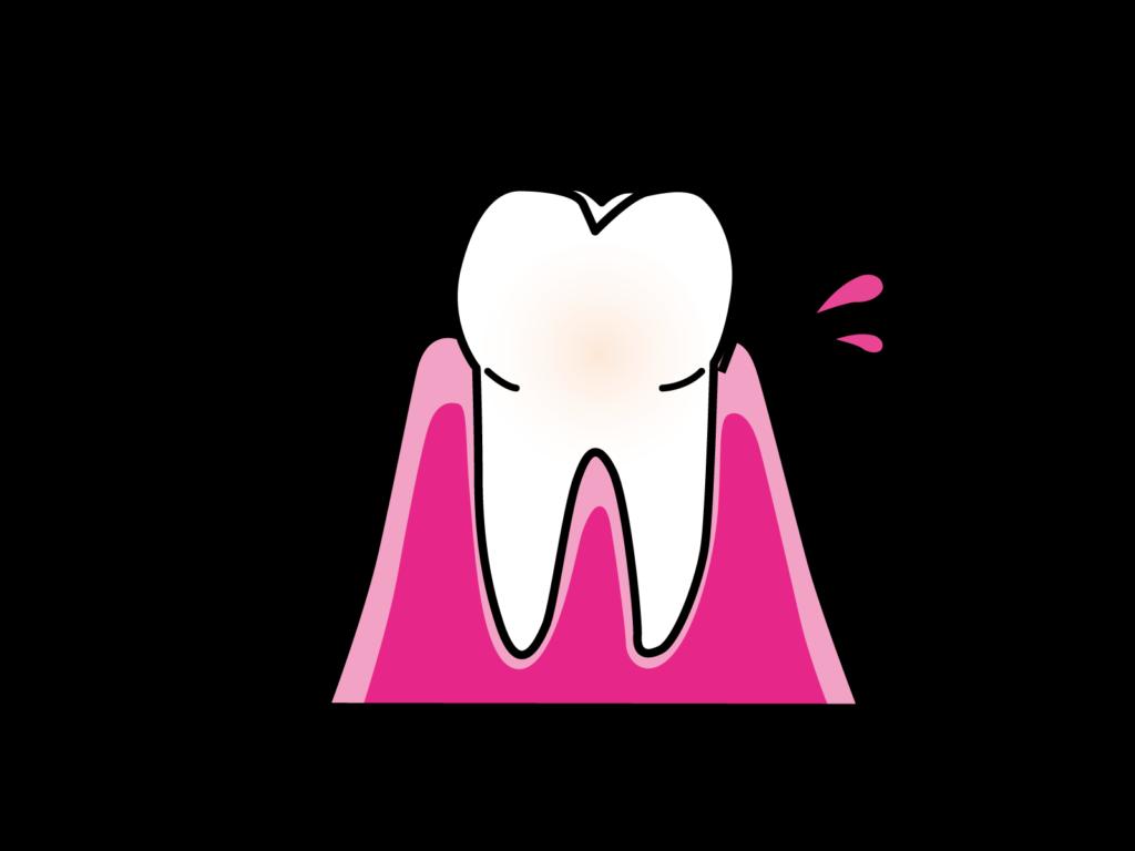 妊娠中の歯茎からの出血