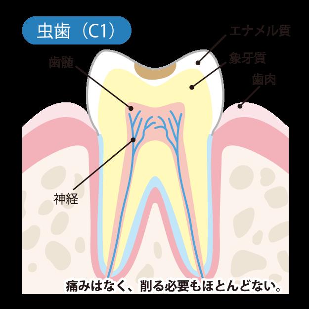 虫歯の進行度(C1)