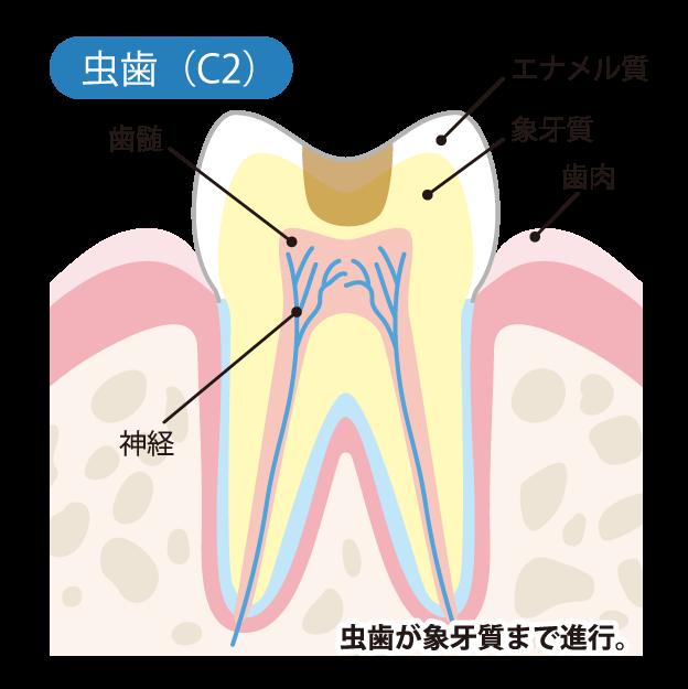 虫歯の進行度(C2)