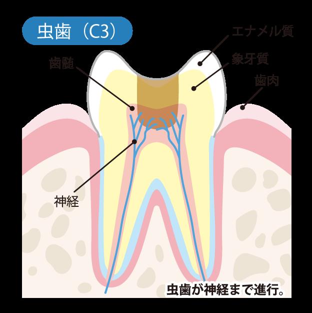 虫歯の進行度(C3)