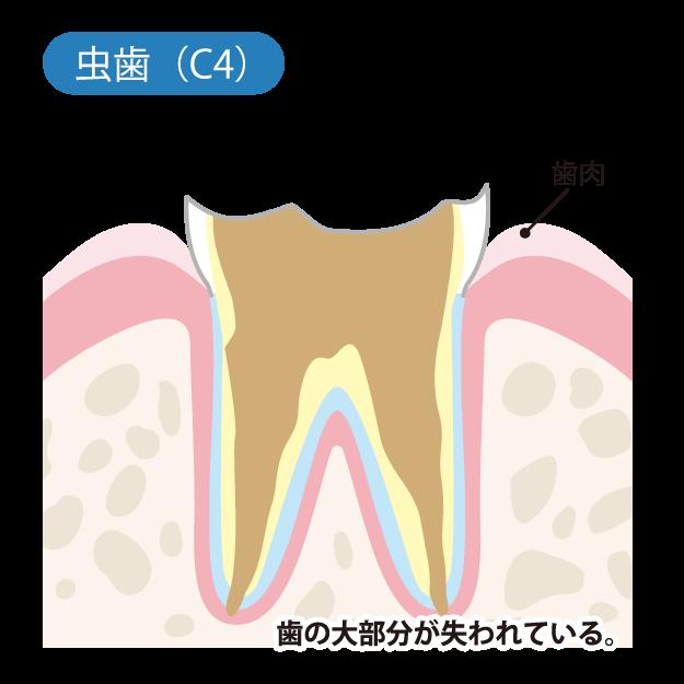 虫歯の進行度(C4)
