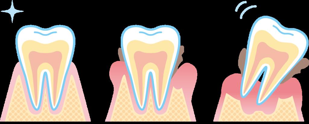 歯周病が進行していくメカニズム