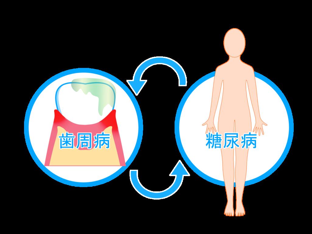 歯周病と糖尿病の関係